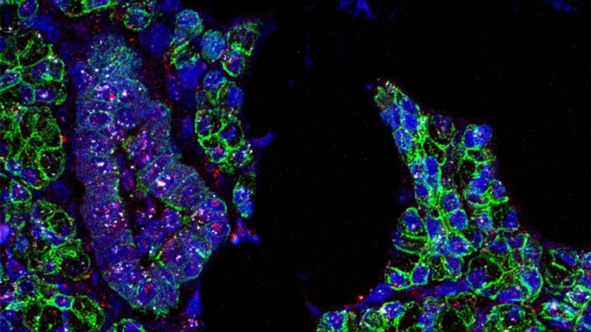 RNA for SARS-CoV-2 (pink) and the ACE2 receptor (white) was found in salivary gland cells, which are outlined in green. Credit: Paola Perez, PhD, Warner Lab